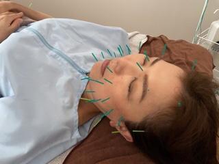 月1回の鍼治療で全身メンテナンス